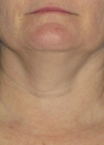 Ultherapy Gallery - Patient 5884018 - Image 1