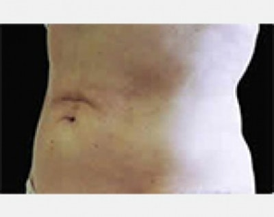 CoolSculpting Gallery - Patient 5884015 - Image 2