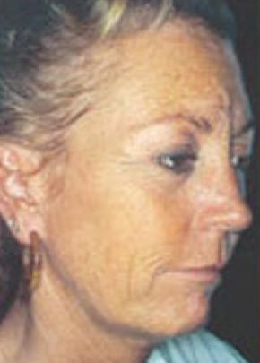 Skin Peels Gallery - Patient 5884021 - Image 1