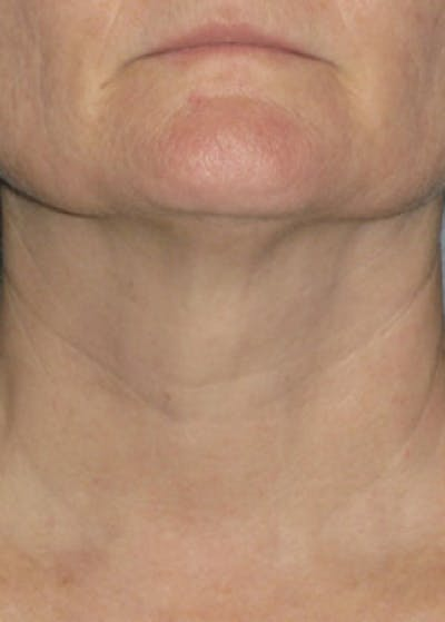 Ultherapy Gallery - Patient 5884018 - Image 7