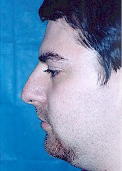 Rhinoplasty Gallery - Patient 5884020 - Image 1