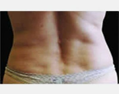 CoolSculpting Gallery - Patient 5884019 - Image 2