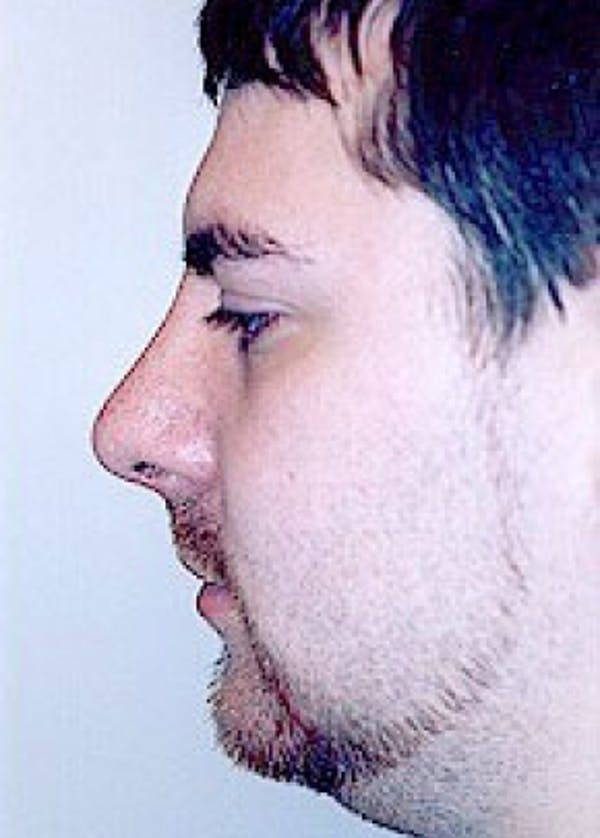 Rhinoplasty Gallery - Patient 5884020 - Image 2