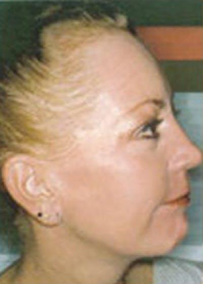 Skin Peels Gallery - Patient 5884021 - Image 2