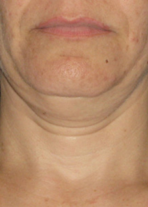 Ultherapy Gallery - Patient 5884024 - Image 1