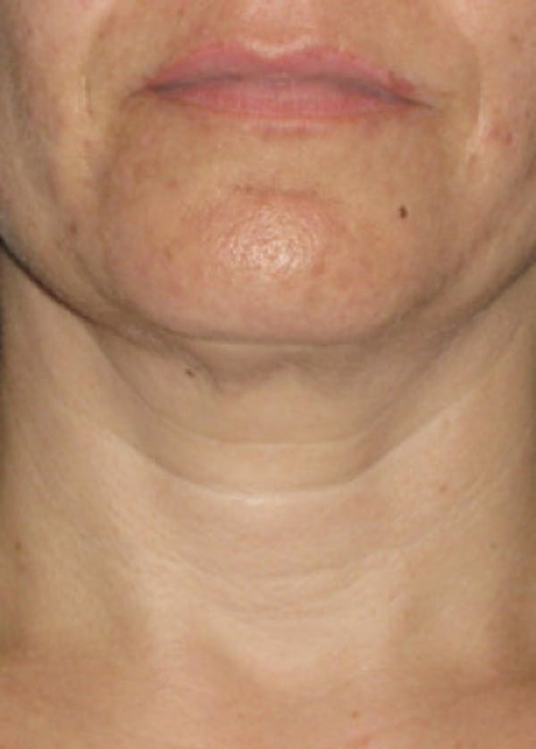 Ultherapy Gallery - Patient 5884024 - Image 2