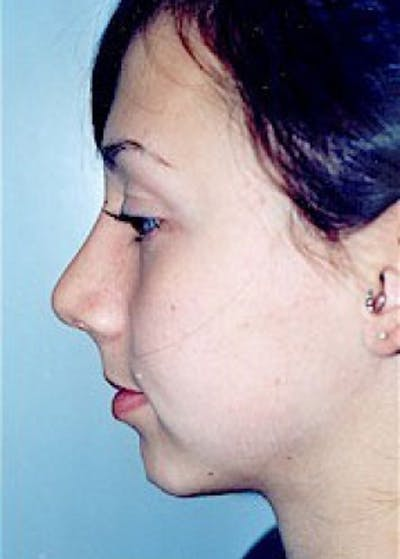 Rhinoplasty Gallery - Patient 5884025 - Image 2