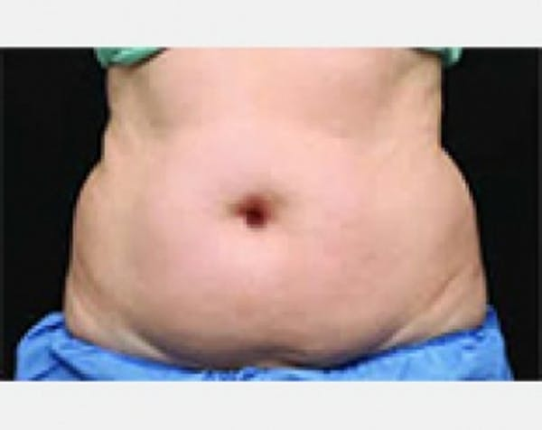 CoolSculpting Gallery - Patient 5884027 - Image 1