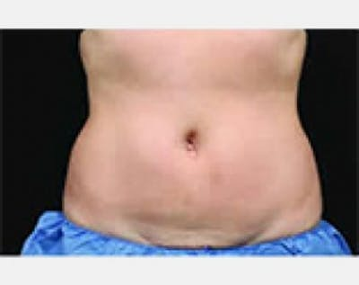 CoolSculpting Gallery - Patient 5884027 - Image 16