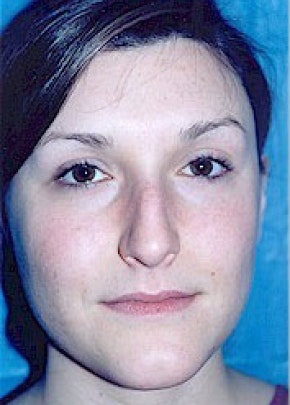 Rhinoplasty Gallery - Patient 5884033 - Image 1