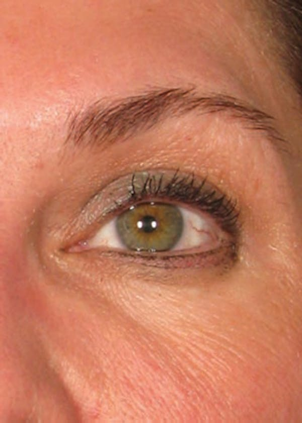 Ultherapy Gallery - Patient 5884028 - Image 2
