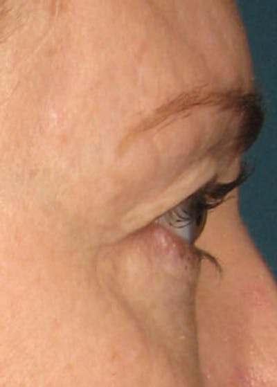 Ultherapy Gallery - Patient 5884035 - Image 1