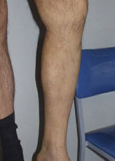Spider Vein Removal Gallery - Patient 5884031 - Image 1
