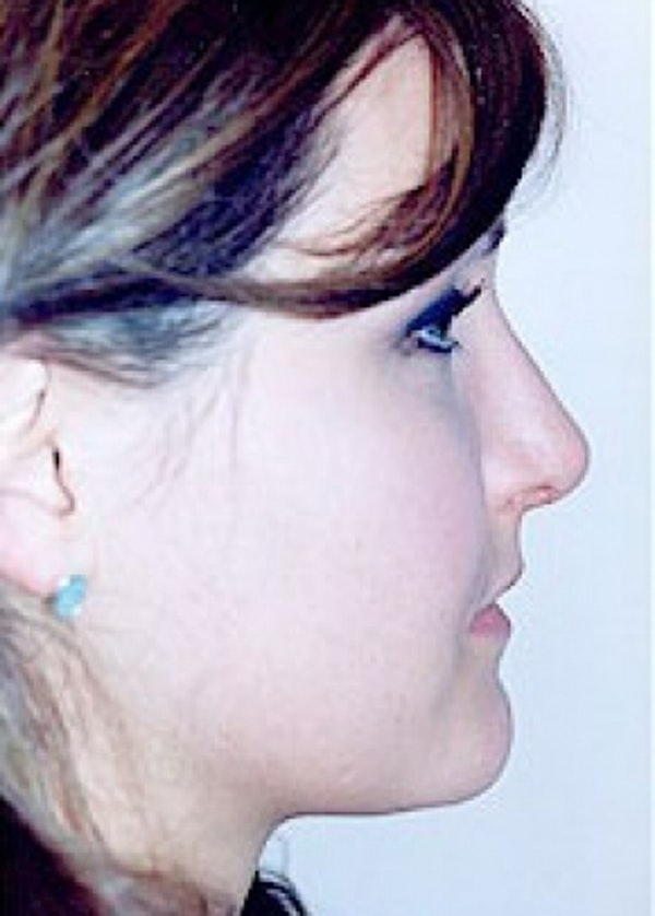 Rhinoplasty Gallery - Patient 5884033 - Image 4