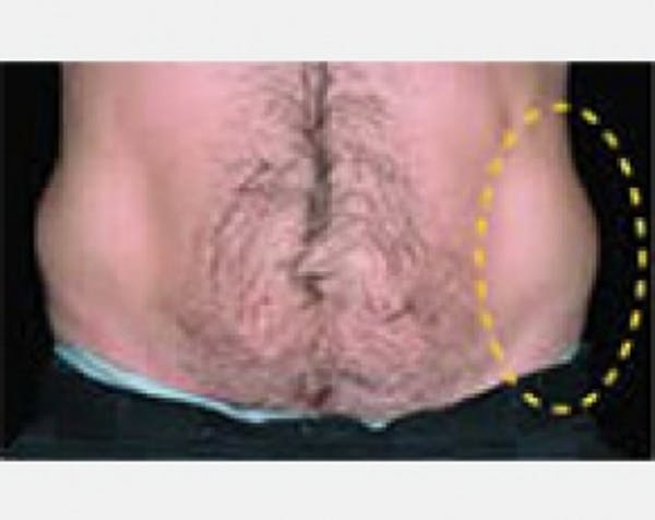 CoolSculpting Gallery - Patient 5884034 - Image 1