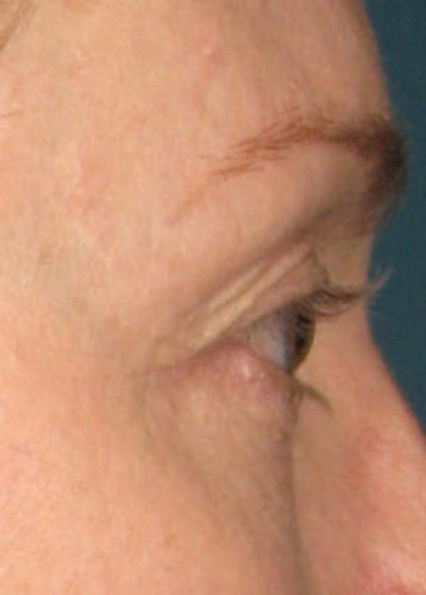 Ultherapy Gallery - Patient 5884035 - Image 2