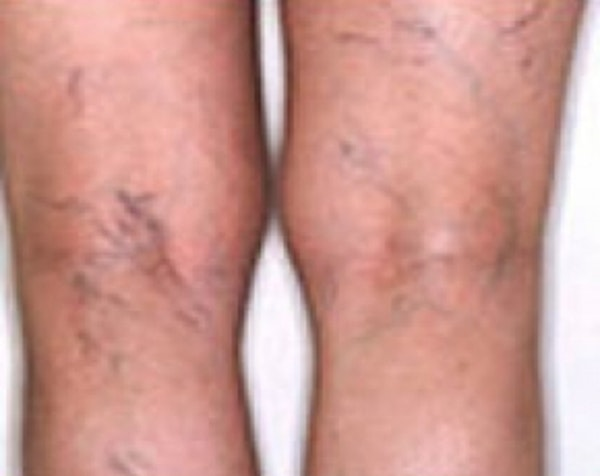 Spider Vein Removal Gallery - Patient 5884036 - Image 1