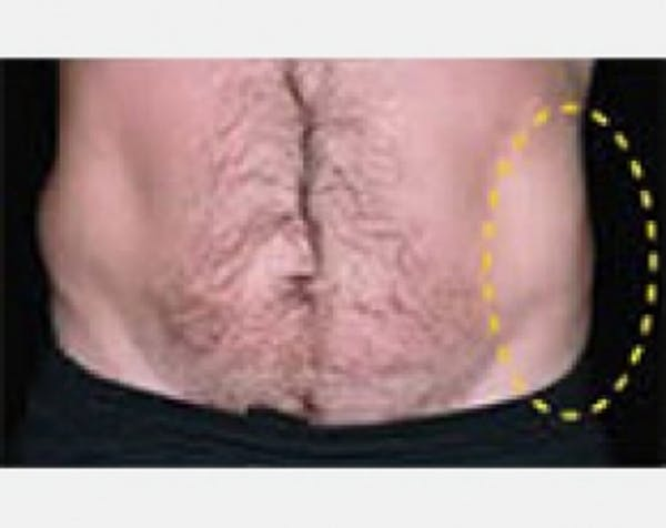 CoolSculpting Gallery - Patient 5884034 - Image 2