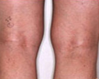 Spider Vein Removal Gallery - Patient 5884036 - Image 2