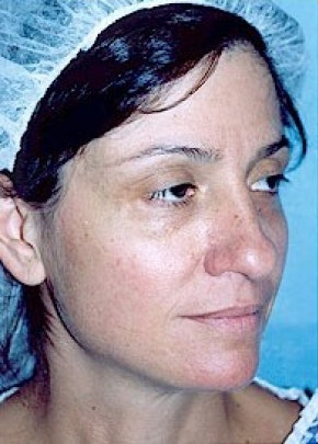 Rhinoplasty Gallery - Patient 5884041 - Image 1
