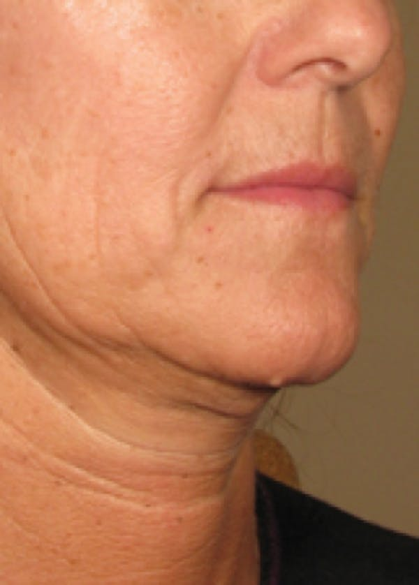 Ultherapy Gallery - Patient 5884039 - Image 1