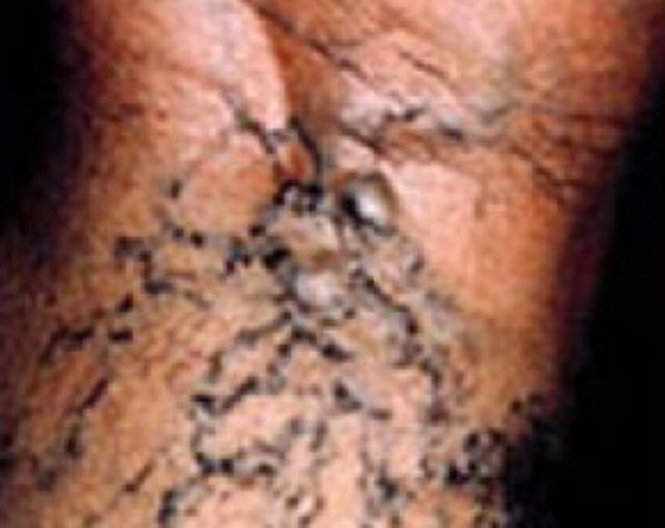 Spider Vein Removal Gallery - Patient 5884038 - Image 1