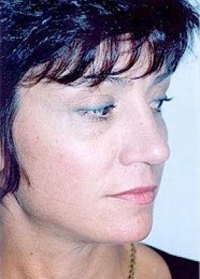 Rhinoplasty Gallery - Patient 5884041 - Image 2