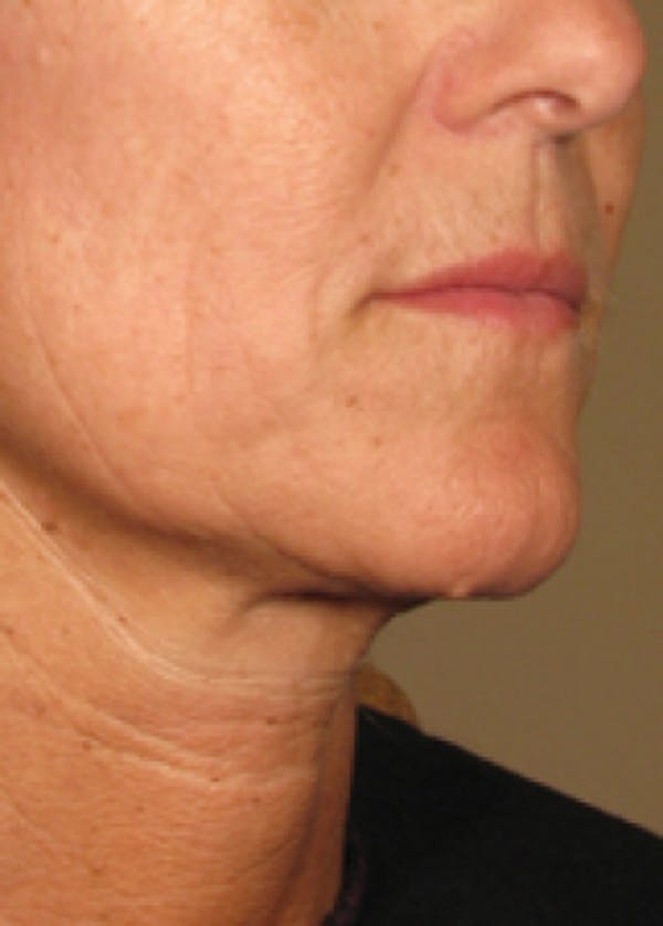 Ultherapy Gallery - Patient 5884039 - Image 2