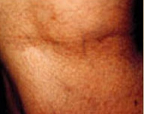 Spider Vein Removal Gallery - Patient 5884038 - Image 2