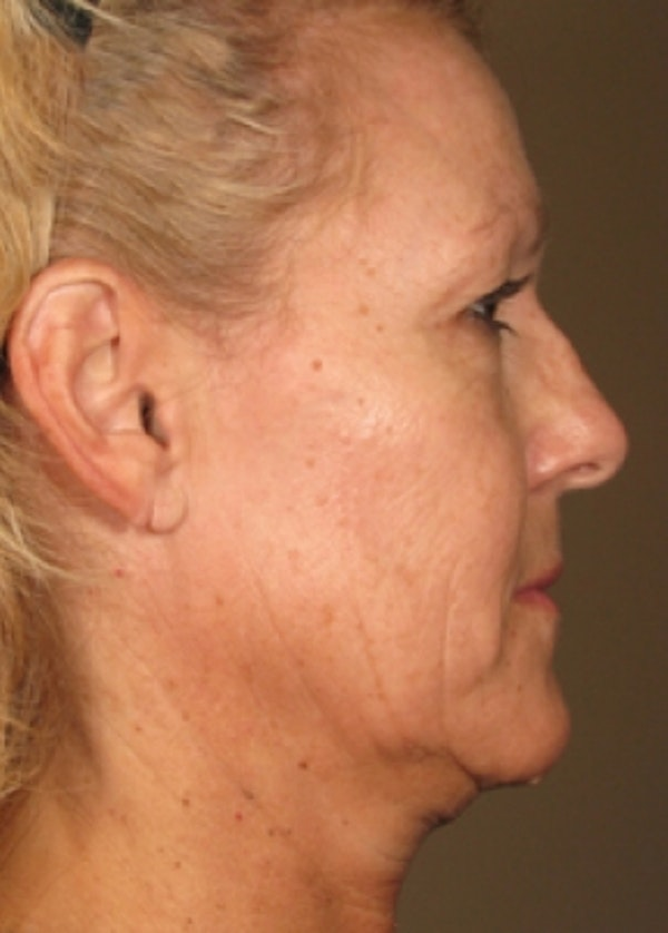 Ultherapy Gallery - Patient 5884043 - Image 1