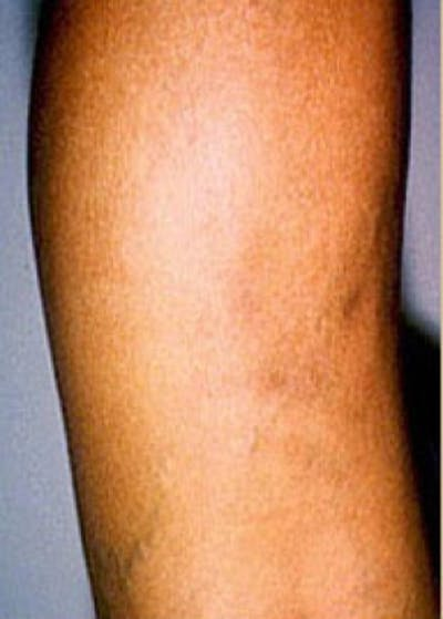 Spider Vein Removal Gallery - Patient 5884042 - Image 4