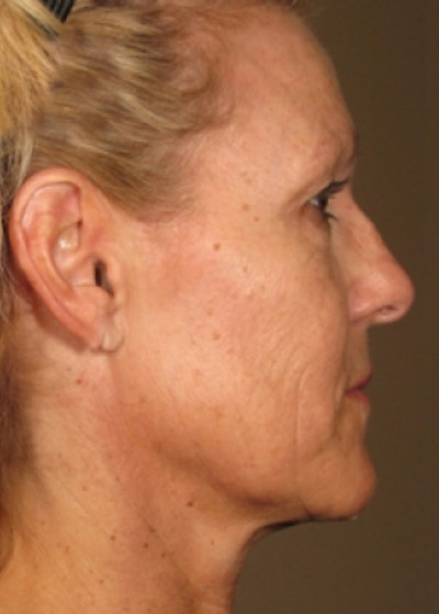 Ultherapy Gallery - Patient 5884043 - Image 2