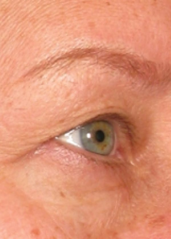 Ultherapy Gallery - Patient 5884046 - Image 1