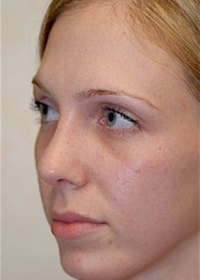 Rhinoplasty Gallery - Patient 5884045 - Image 2