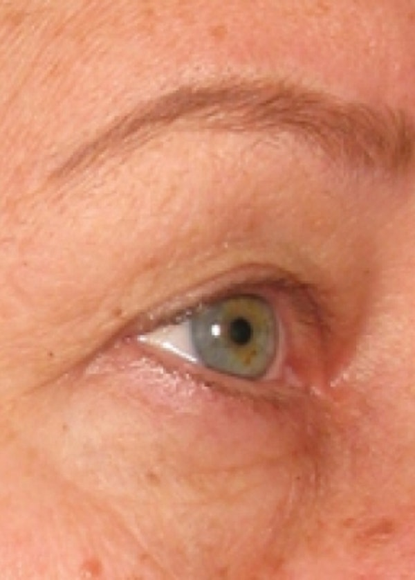 Ultherapy Gallery - Patient 5884046 - Image 2