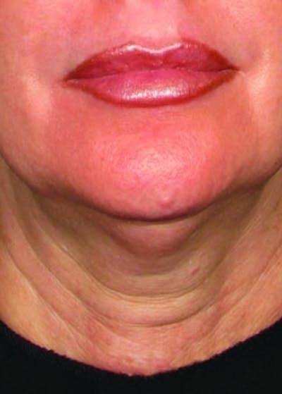 Ultherapy Gallery - Patient 5884048 - Image 1