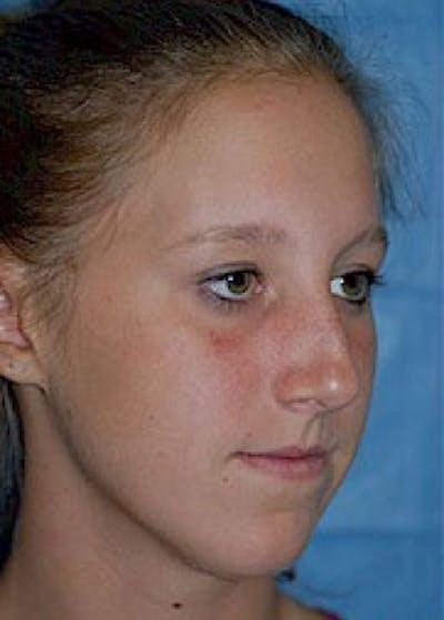 Rhinoplasty Gallery - Patient 5884049 - Image 1