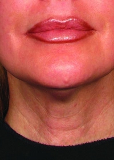 Ultherapy Gallery - Patient 5884048 - Image 2