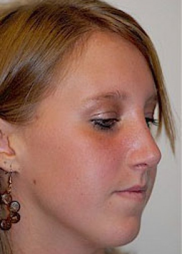 Rhinoplasty Gallery - Patient 5884049 - Image 2