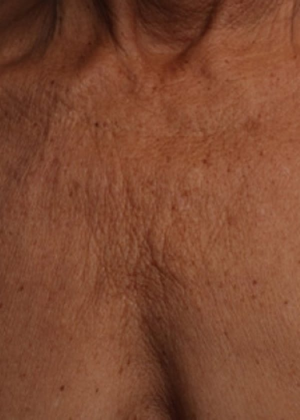 Ultherapy Gallery - Patient 5884050 - Image 1