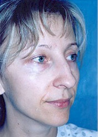 Rhinoplasty Gallery - Patient 5884051 - Image 1