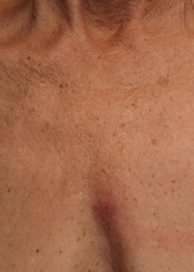 Ultherapy Gallery - Patient 5884050 - Image 2
