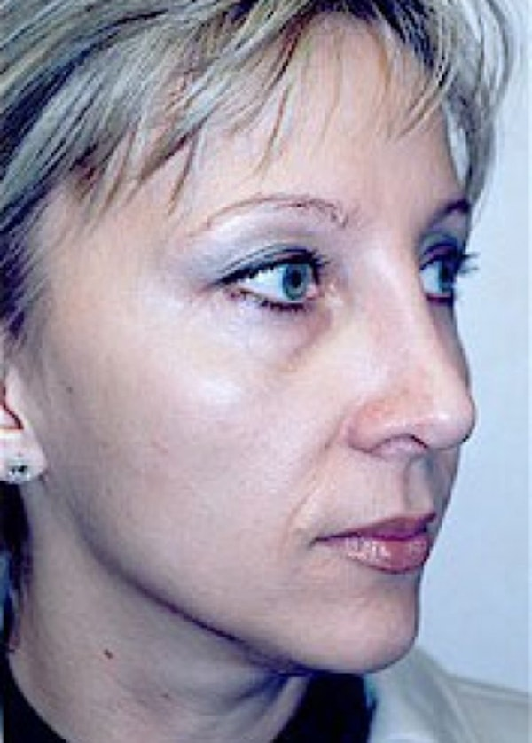 Rhinoplasty Gallery - Patient 5884051 - Image 2