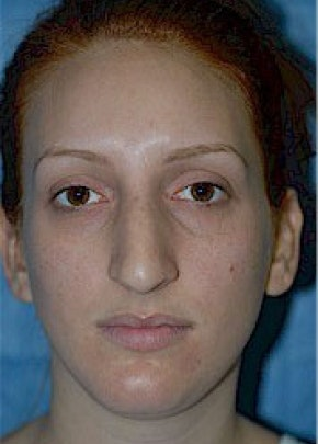 Rhinoplasty Gallery - Patient 5884054 - Image 1