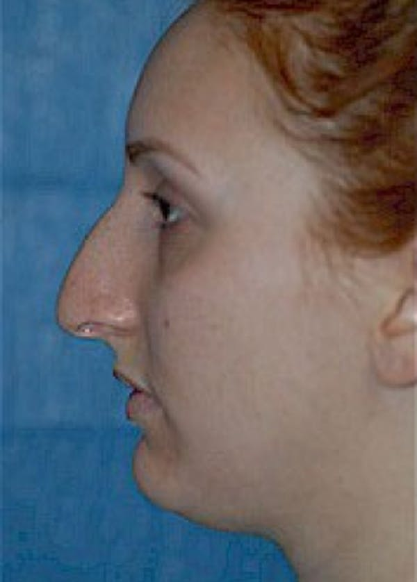 Rhinoplasty Gallery - Patient 5884054 - Image 3