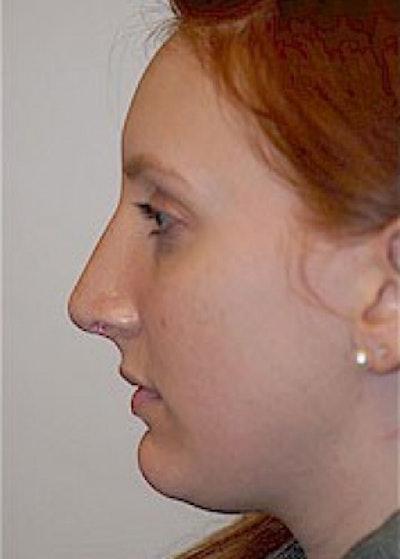 Rhinoplasty Gallery - Patient 5884054 - Image 4