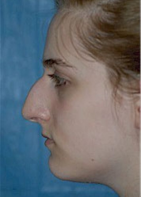 Rhinoplasty Gallery - Patient 5884056 - Image 3