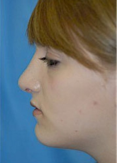 Rhinoplasty Gallery - Patient 5884056 - Image 4