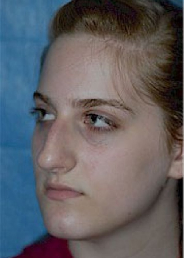 Rhinoplasty Gallery - Patient 5884056 - Image 5