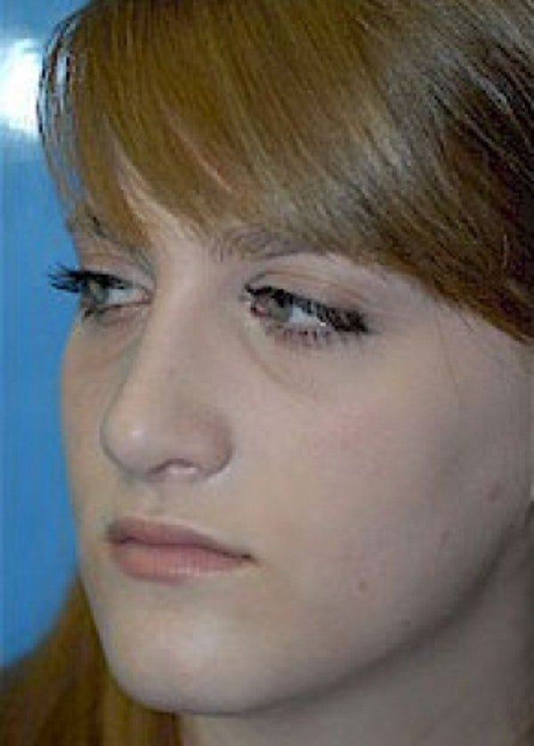 Rhinoplasty Gallery - Patient 5884056 - Image 6